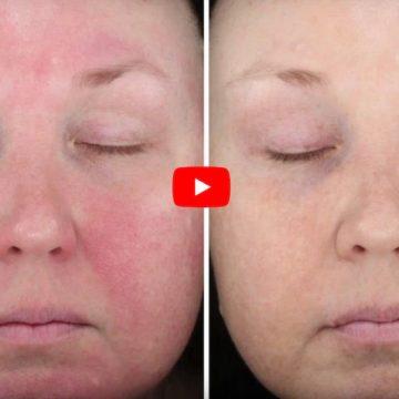 Onreltea: New Rosacea Treatment