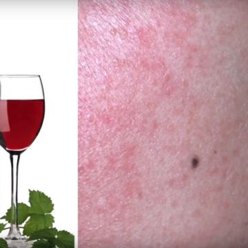 Lifestyle Adjustments for People Who Have Rosacea